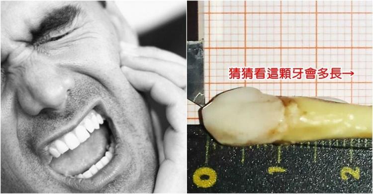 破金氏世界紀錄!男子因牙痛拔牙竟扯出長達XX公分的...網驚:人類史上最長牙4ni